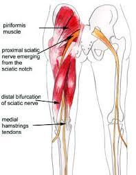 sciatica mederi health