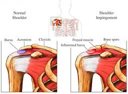 shoulder pain mederi health
