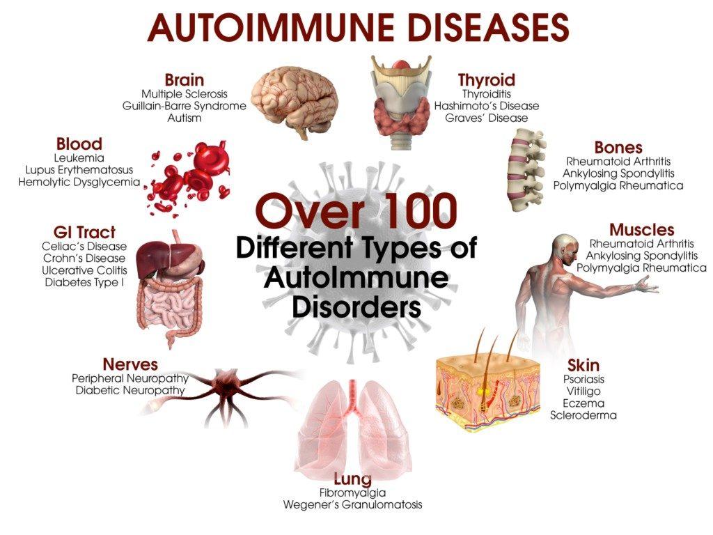 autoimmune diseases list
